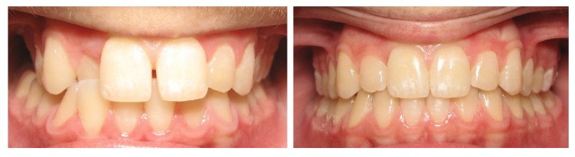 Invisalign Before and After: Example 2